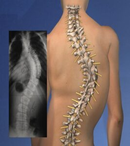 spinal curve - scoliosis